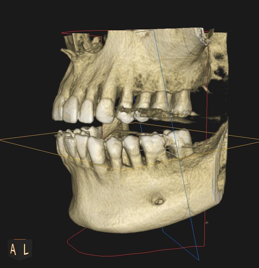 3D-Zahn-Bild