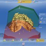 Digitale Scans der Kieferbögen