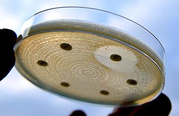 Dentalhygiene mit antibiothischer Therapie
