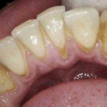 Massive Plaquebildung, Zahnfleischentzündung