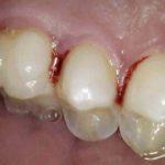 Zahnfleischblutung durch Entzündung