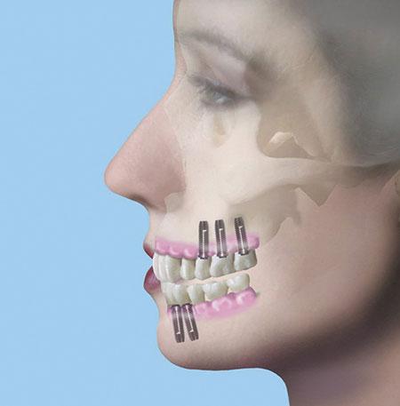 Implantate - Dr Czernicky Wien