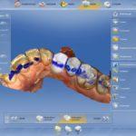 Design der Kronen und Inlays mittels CAD/CAM-Software