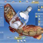 Vorbereiten auf den Schleifvorgang in der CAD/CAM-Software