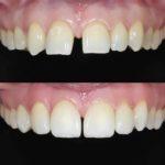 Smile Design mit Vollkeramikkronen bei fehlendem seitlichen Schneidezahn, vorher - nachher