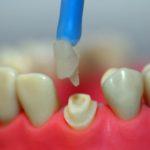 Stiftkrone: keramischer Stiftaufbau wird in die verbleibende Zahnwurzel eingesetzt