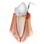 Leichte Parodontitis, Zahnarzt Wien 1090