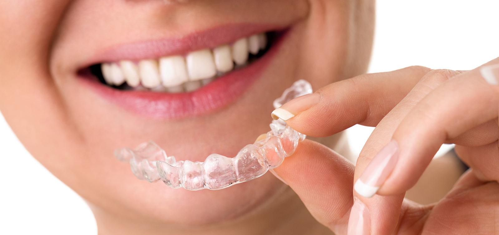Aligner: unsichtbare Zahnspange, der Wohlfühlzahnarzt Wien