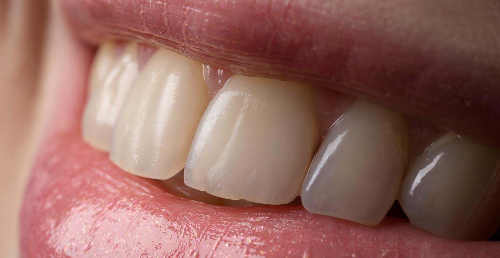 Veneers vom Zahnarzt in Wien