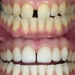 Smile Design mit Bleaching und Veneers, vorher - nachher