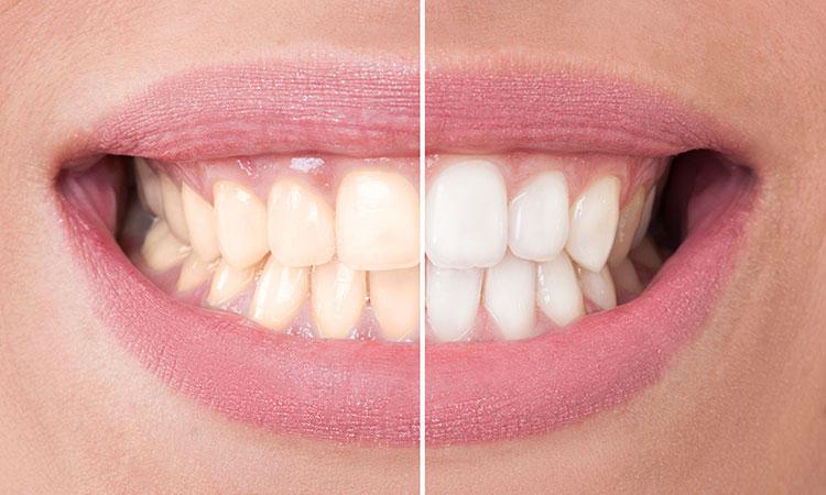 Weißere Zähne durch Bleaching beim Zahnarzt Wien