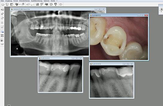 Präzision und Qualität durch volldigitale Röntgenanlage beim Zahnarzt
