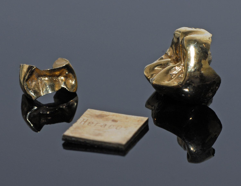 Zahnersatz durch Gold, Zahnarzt Wien 1090